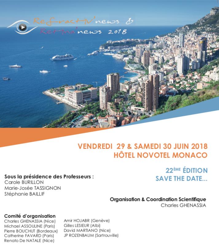Docteur Michael Assouline Ophtalmologie Paris