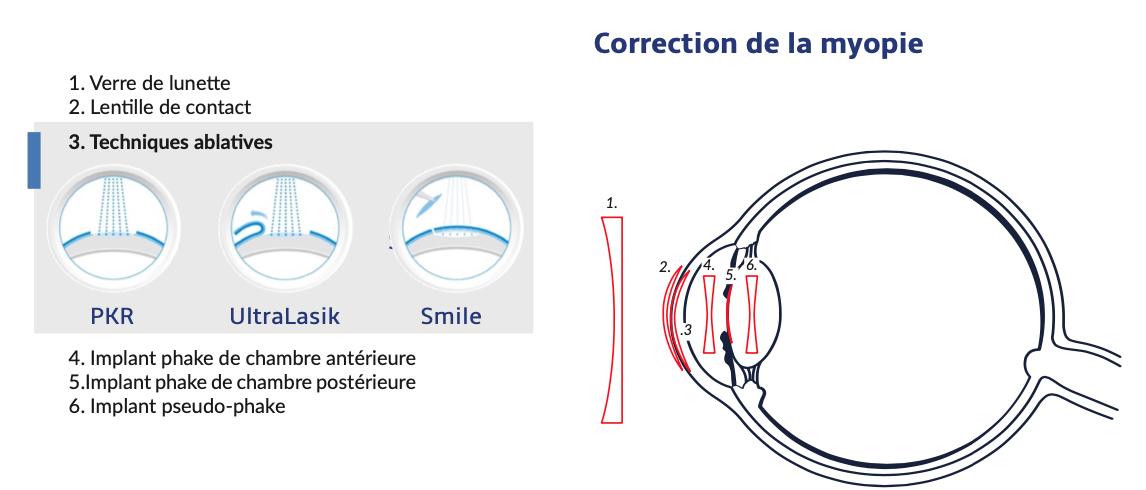 correction de la myopie par chirurgie réfractive