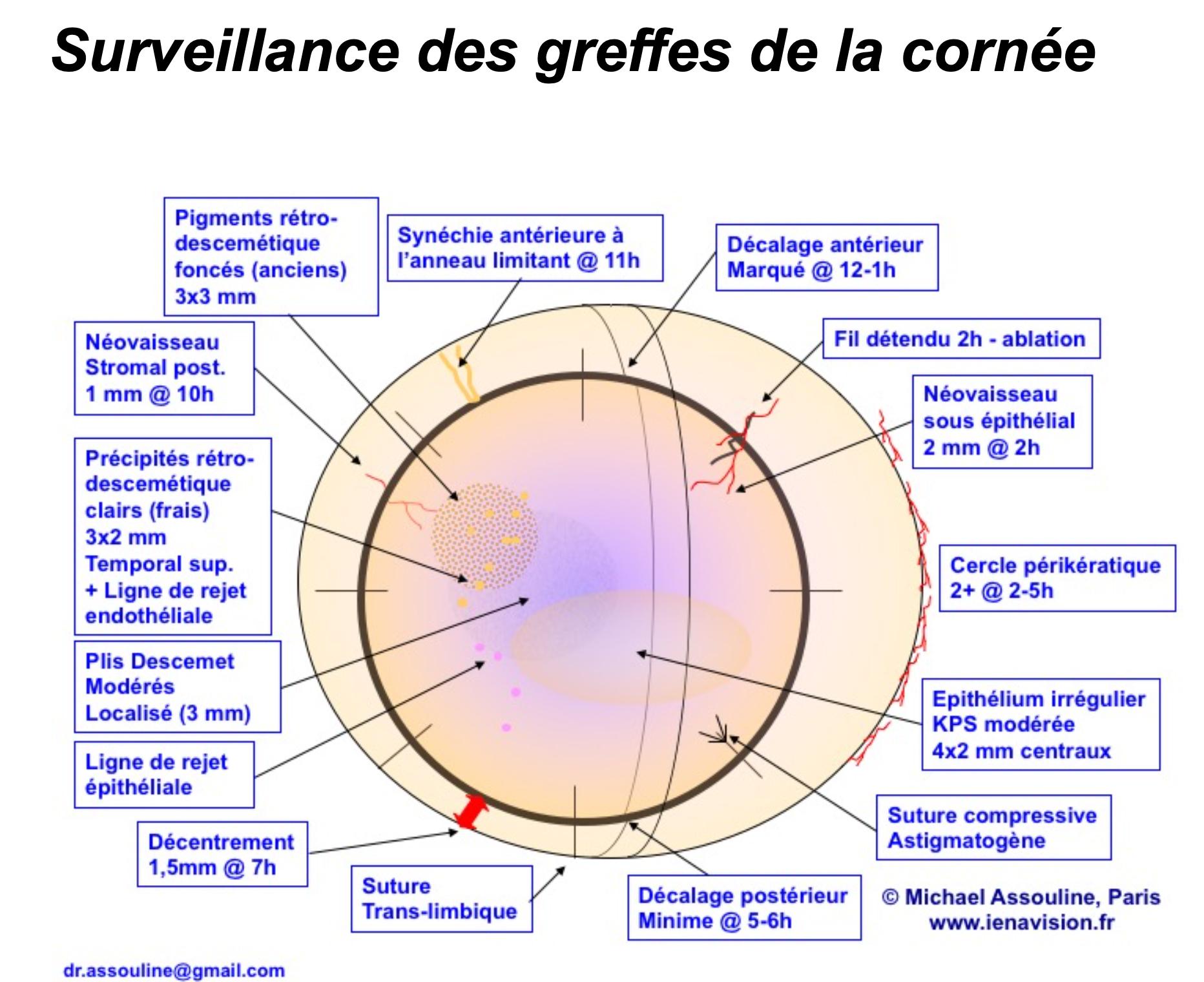 surveillance greffe de cornée